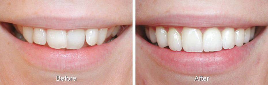 Dental before and after photo - Alexandria