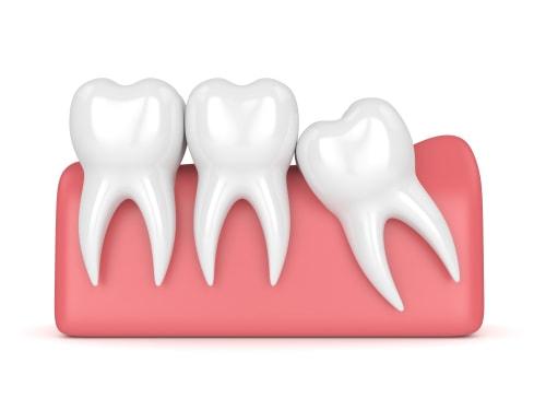 wisdom teeth model